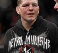 UFC's Nick Diaz tests positive for marijuana again